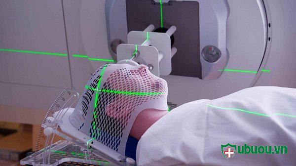 10 thông tin có thể bạn chưa biết về xạ trị u tuyến giáp