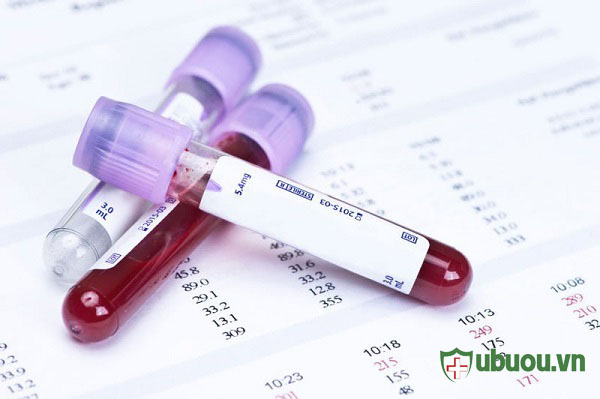 Xét nghiệm máu xác định U tuyến giáp