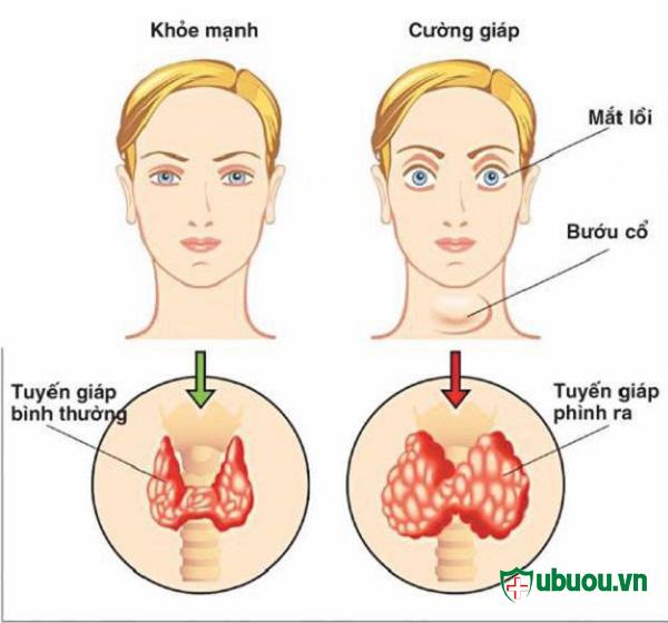 biểu hiện của bệnh Basedow