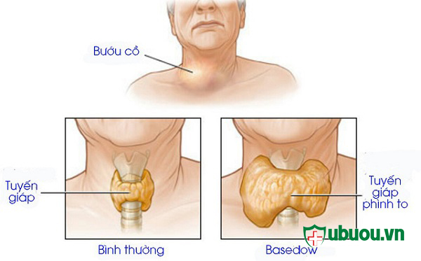 Giới thiệu về bệnh basedow