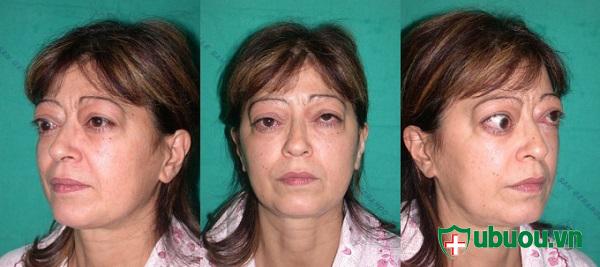 biểu hiện mắt lồi của bệnh basedow