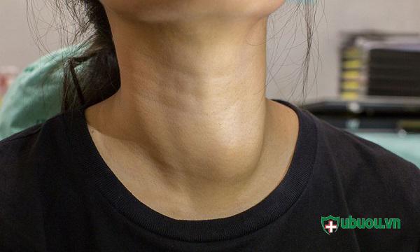 U tuyến giáp lành tính thường không gây nguy hiểm đến sức khỏe người bệnh