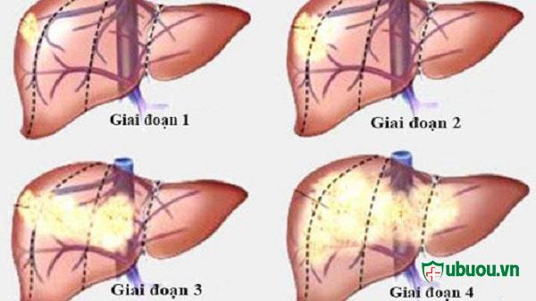 4 giai đoạn của ung thư gan