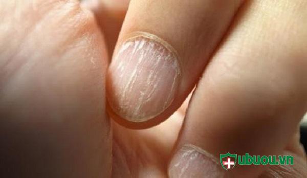 Móng tay khô và ráp là dấu hiệu của bệnh phình tuyến giáp