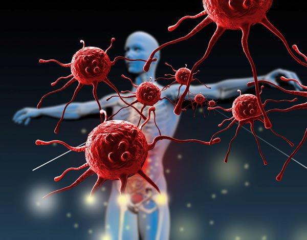 5 nguyên nhân phình tuyến giáp bạn phải biết và cách phòng tránh