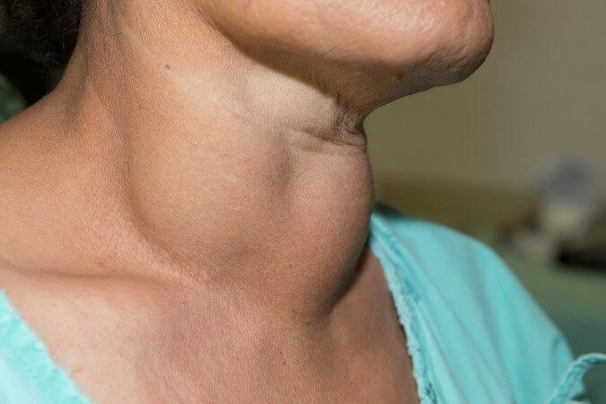 Thuốc điều trị bệnh phình tuyến giáp