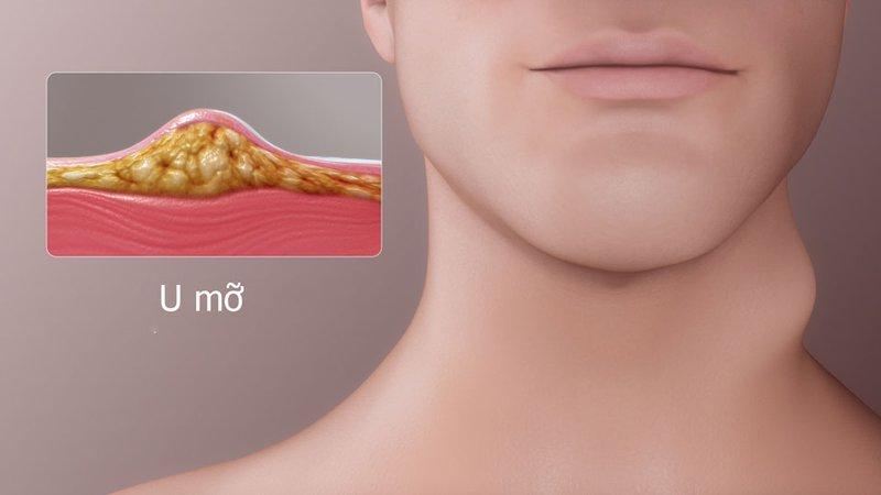 7 lý do bạn nên sử dụng Ancan để hỗ trợ điều trị u mỡ