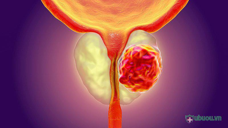 Những điều cần biết về u xơ phì đại tuyến tiền liệt