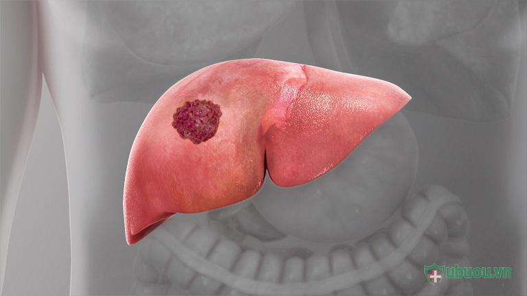 Các phương pháp điều trị ung thư gan giai đoạn cuối